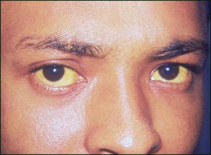 Yellow skin and eyes - jaundice - are some of the symptoms of liver problems