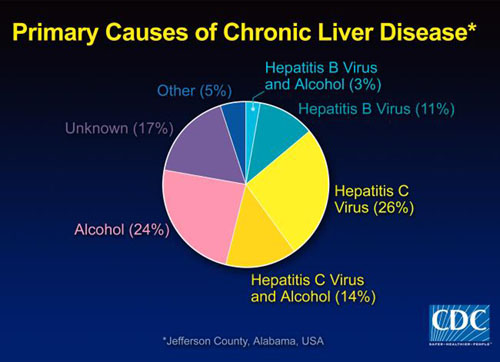Model of causes of chronic liver disease - hepatitis among other things.