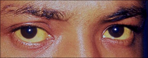Jaundice in the eyes due to liver problems - good idea to get a liver function test.